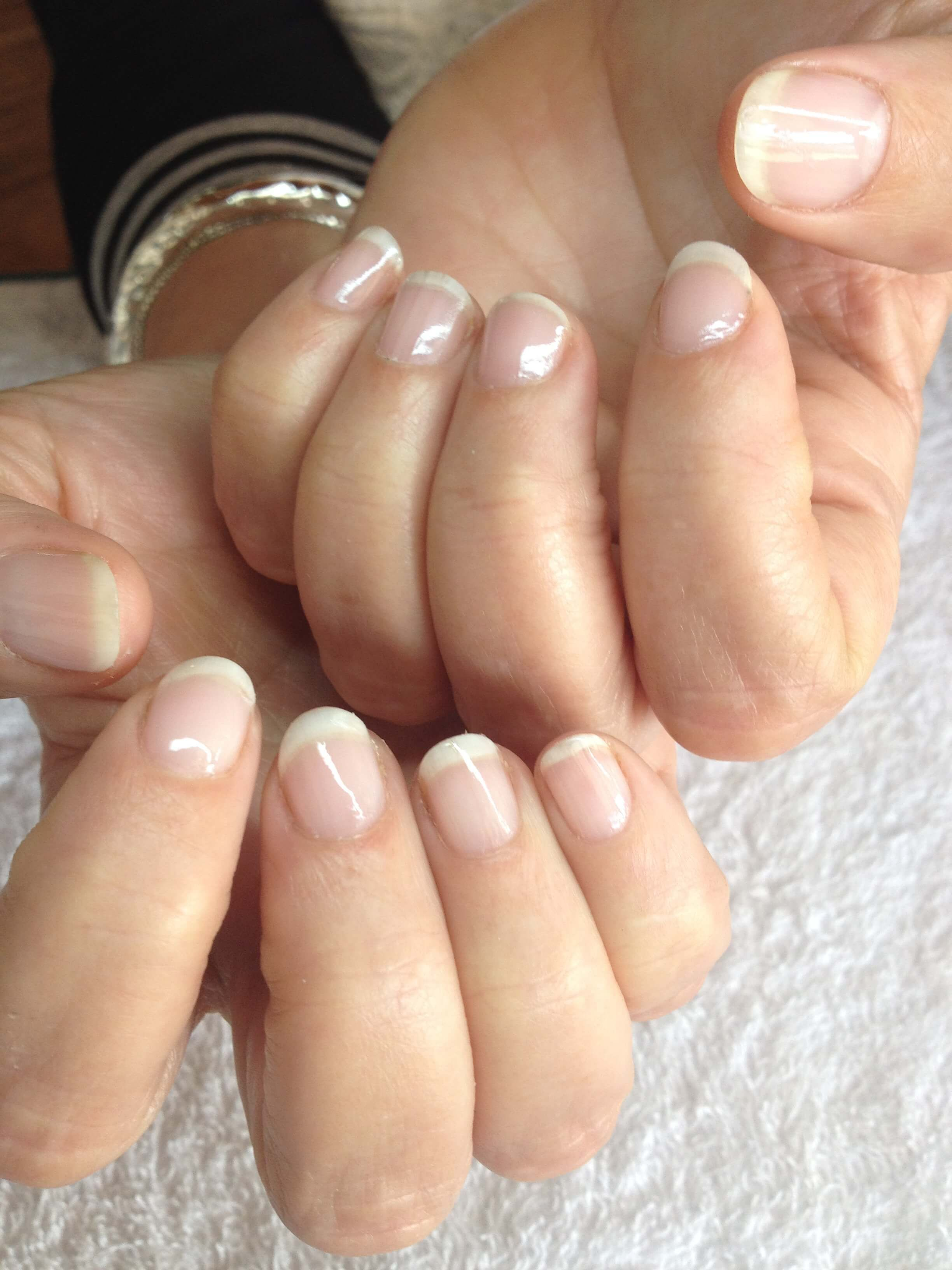 Guaranteed Treatment For Dry Nails – Hydrates & Strengthens - Blu ...