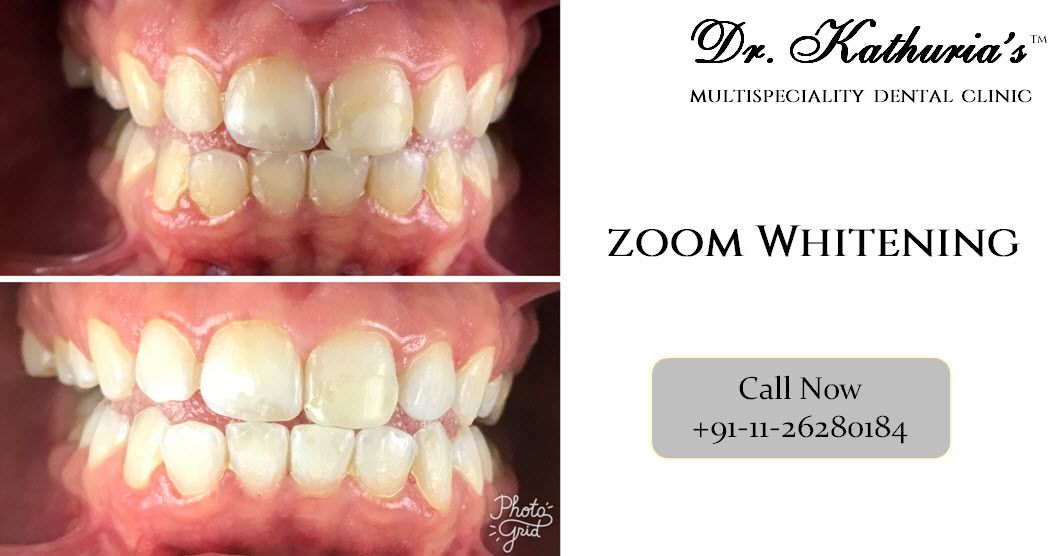 Pin on dental cases