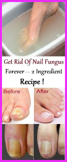 Nail Fungus Can Be Dangerous Remove This By Using Recipe Of 2 Ingredients
