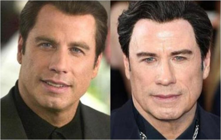 Actors without facial surgeries with