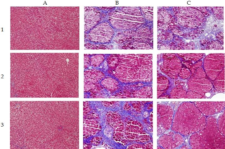 Cirrhosis Liver Cells Under Microscope   Natural Collagen ...