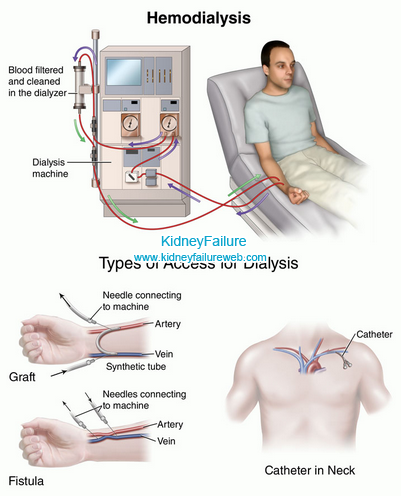 Does Dialysis Make You Itchy Itching Is A Common Complaint Among Dialysis Patients Although Not All Patient Dialysis Clinic Dialysis Medical Surgical Nursing
