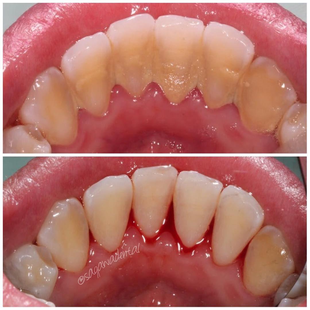 Dental Assistant Jobs Near Me Odontología
