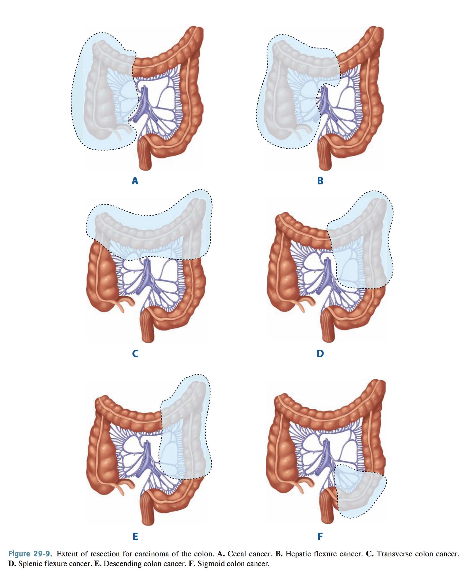 cancer colon operation)