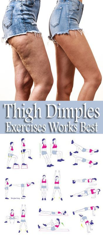 8 Simple & Best Exercises To Get Rid Of Thigh Dimples - In Short Time - Style Vast #exercise