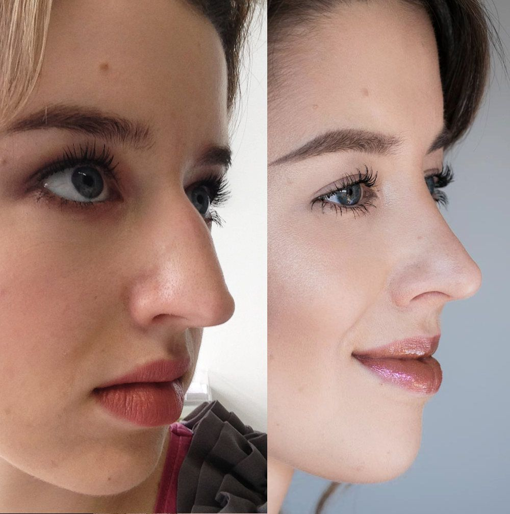 Meine Nasenkorrektur Erfahrung | Carina Teresa Beauty Blog