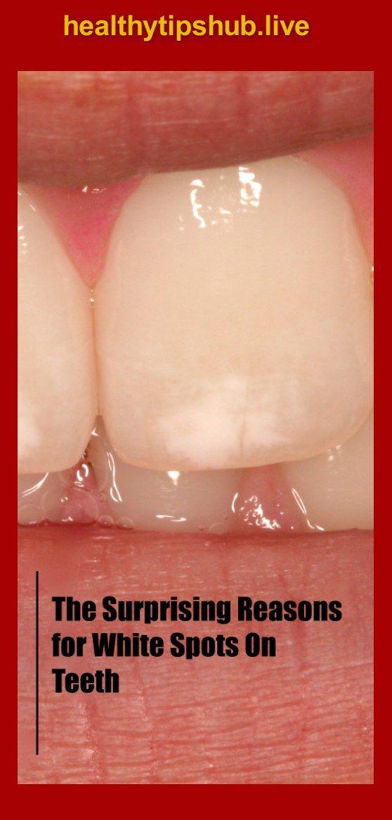 Weiße Flecken auf den Zähnen führen dazu, dass viele Menschen sich ihres Lächelns bewusst werden ….   – Health remedies