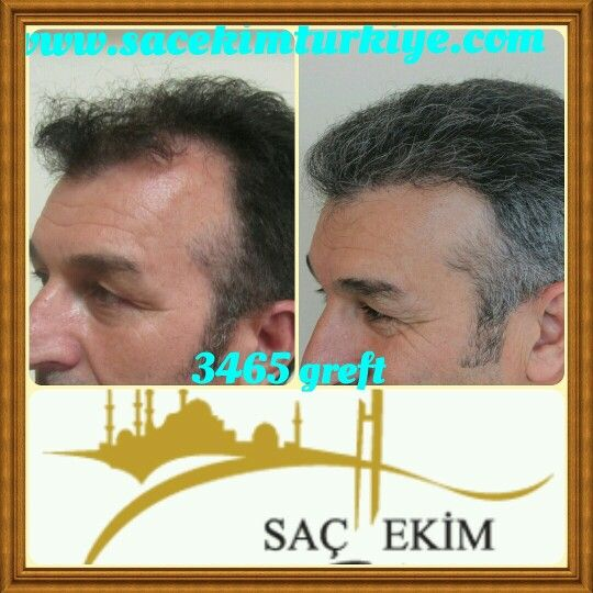 Hair Transplant Before And After Pictures Hair Transplant