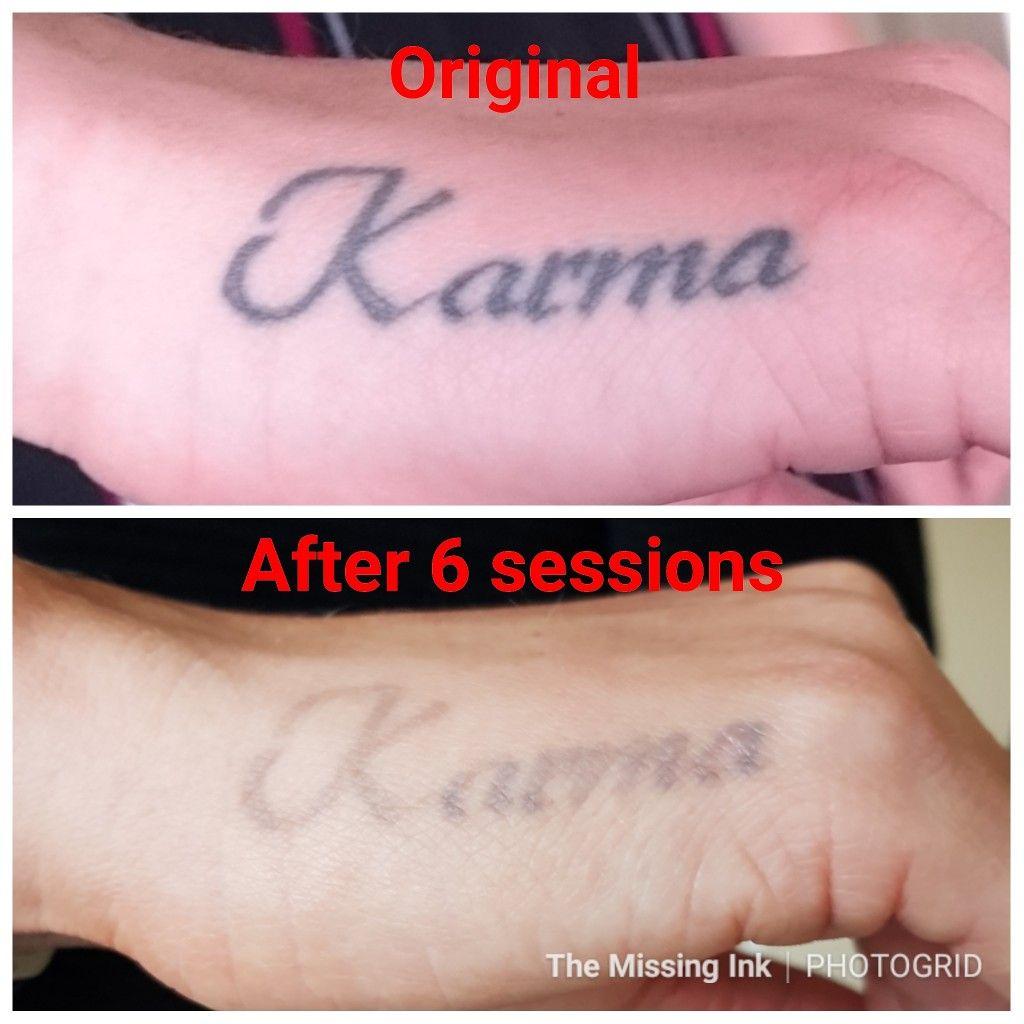 Hand tattoo Laser tattoo, Laser tattoo removal, Tattoo