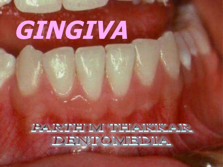 Healthy Gingiva | Gingivitis Vs Healthy Gums healthy gums ...