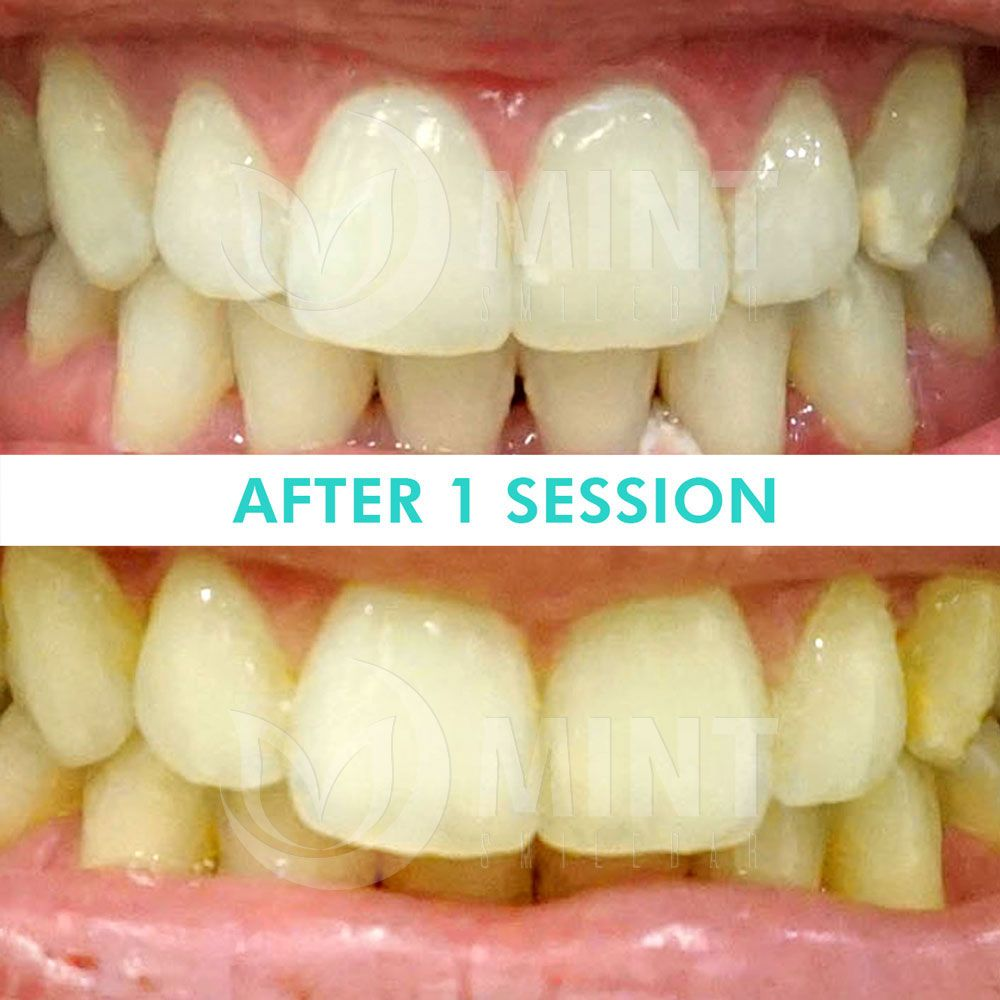 Pin On Led Teeth Whitening Before Afters