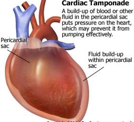 fluid that fills the pericardial sac