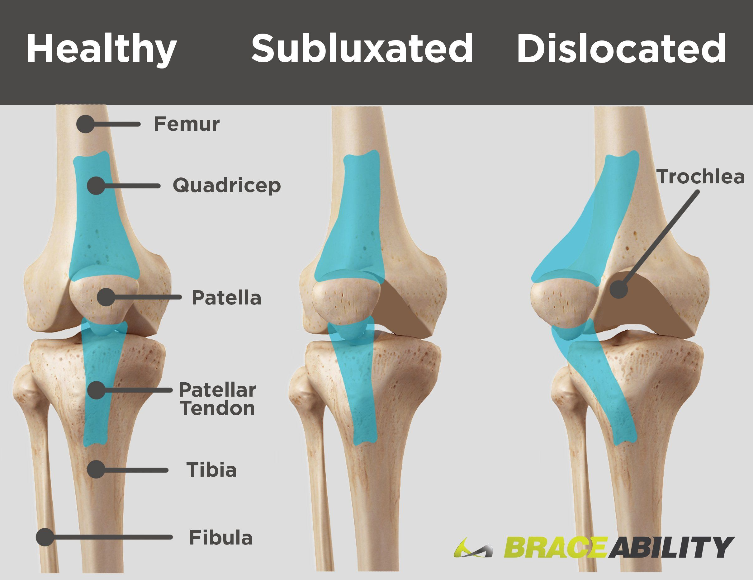 small resolution of use this diagram to see the difference between a subluxated kneecap and one that is fully