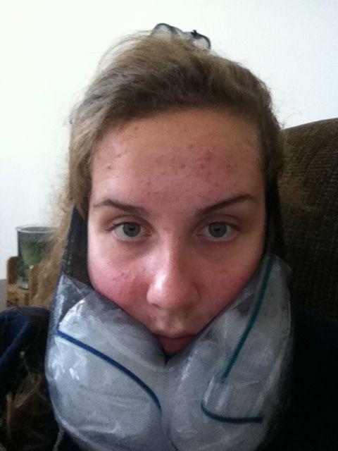 Wisdom teeth removal: the beard of ice, cut pantyhose in