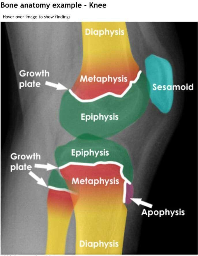 Pin von Dr Nazahat Pasha auf Radiology   Pinterest   Ausbildung ...