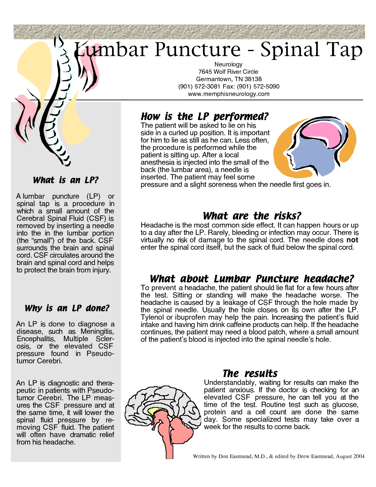 Spinal Tap Procedure | Lumbar Puncture - Spinal Tap … | Pinteres…