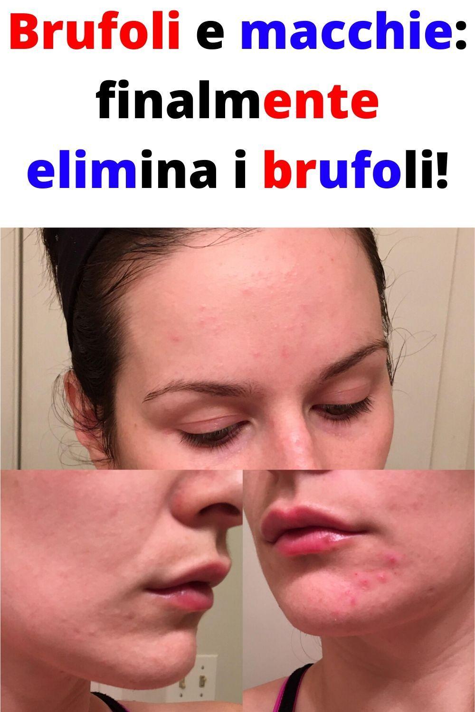 Brufoli e macchie: finalmente elimina i brufoli!
