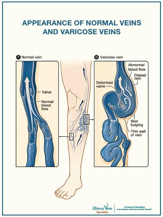 Incompetent valves   Egészség   Pinterest   Anatomía humana ...