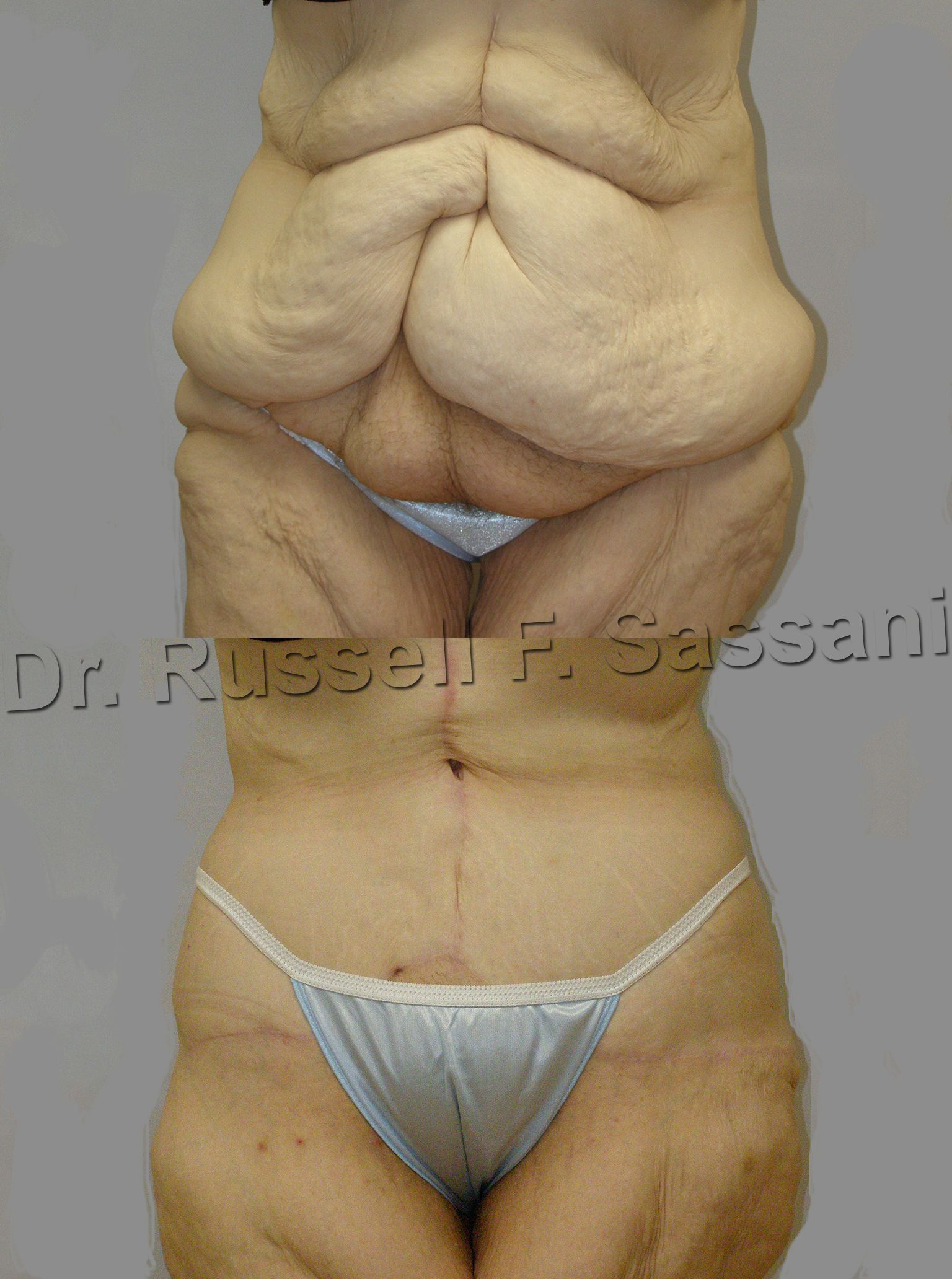 3ca371c4c625a Before   After pic of Fleur-de-lis Abdominoplasty used in situations of  major weight loss.  TummyTuck  PlasticSurgery