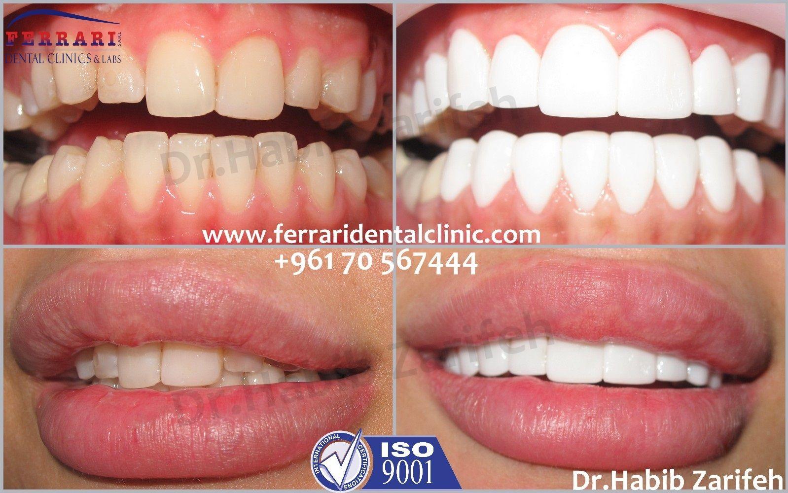 Join Our Hall Of Fame Dr Habib Zarifeh Dentagama Dental Cosmetics Dental Veneers Perfect Teeth