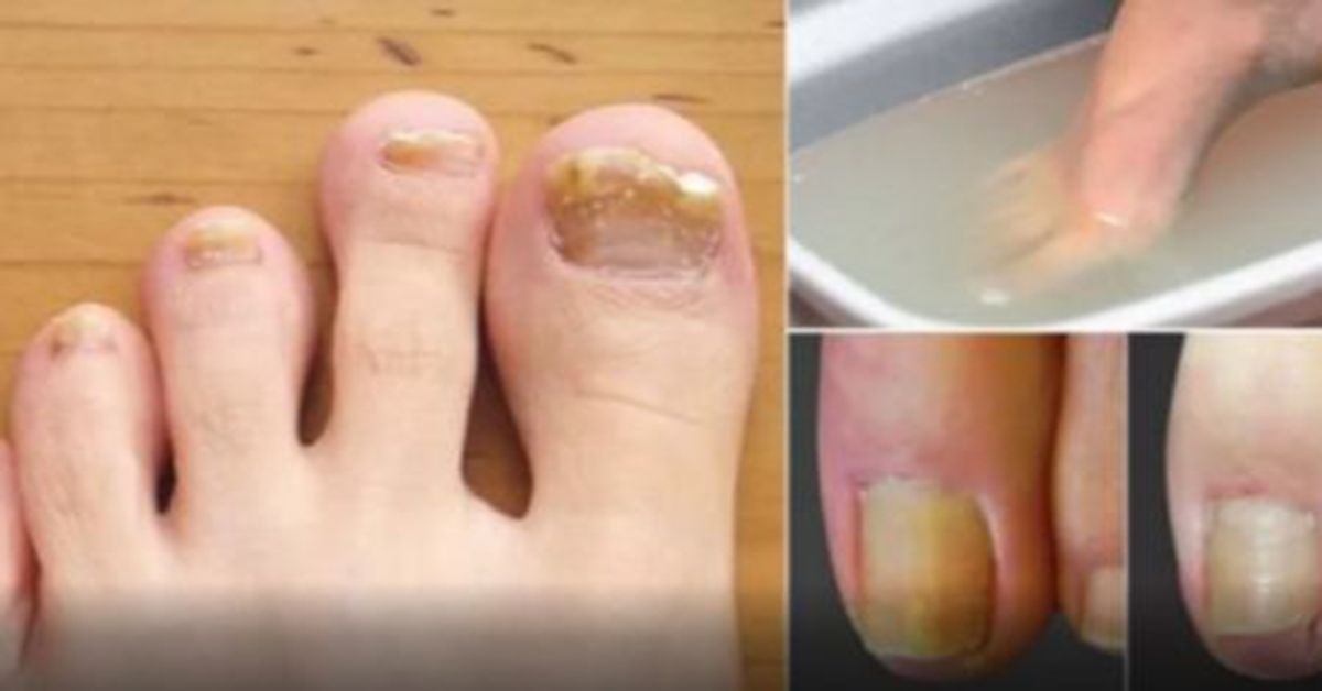 Remove Fungi Of Toenails With Just 2 Items Toenail Fungus Remedies Toenail Fungus Toenail Fungus Treatment
