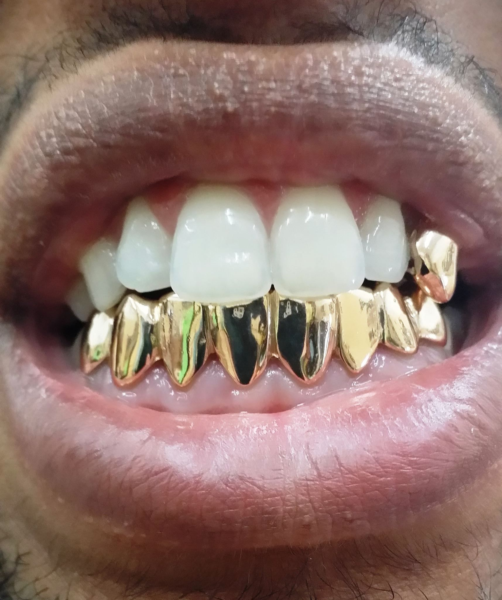 Image result for Custom Gold Grillz istock