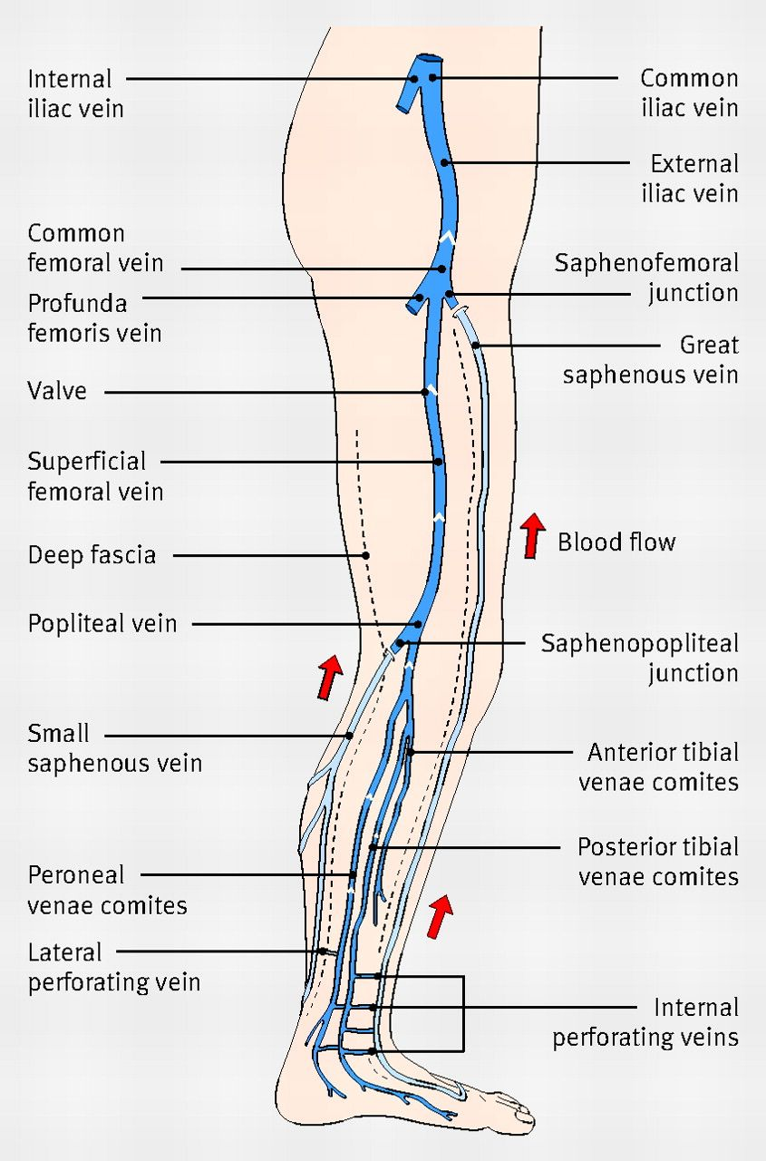Diagram showing the venous anatomy of the leg ...