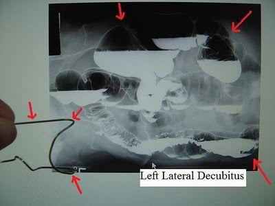 Left Lateral Decubitus | Radiology schools, Radiologic ...
