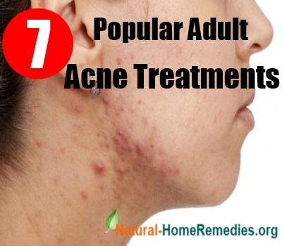 acne natural cures adult