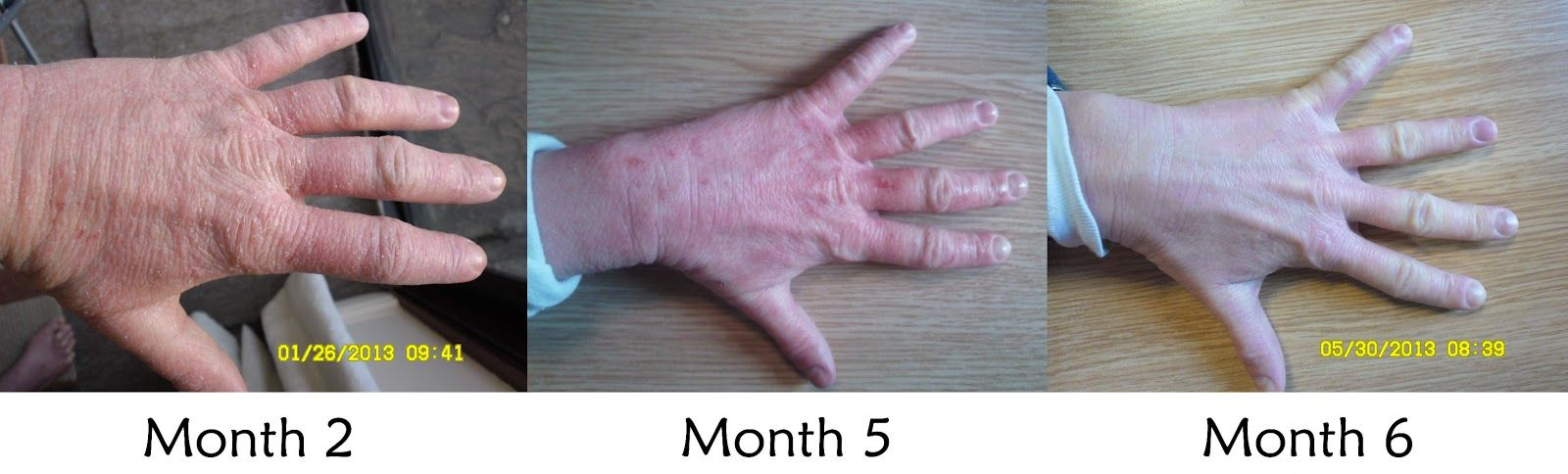 Pin On Red Skin Syndrome
