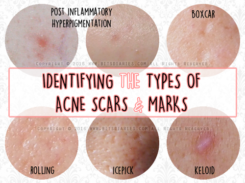 2163c2edb2d682271662c46c463973ff - How To Get Rid Of Pimple Marks On Back