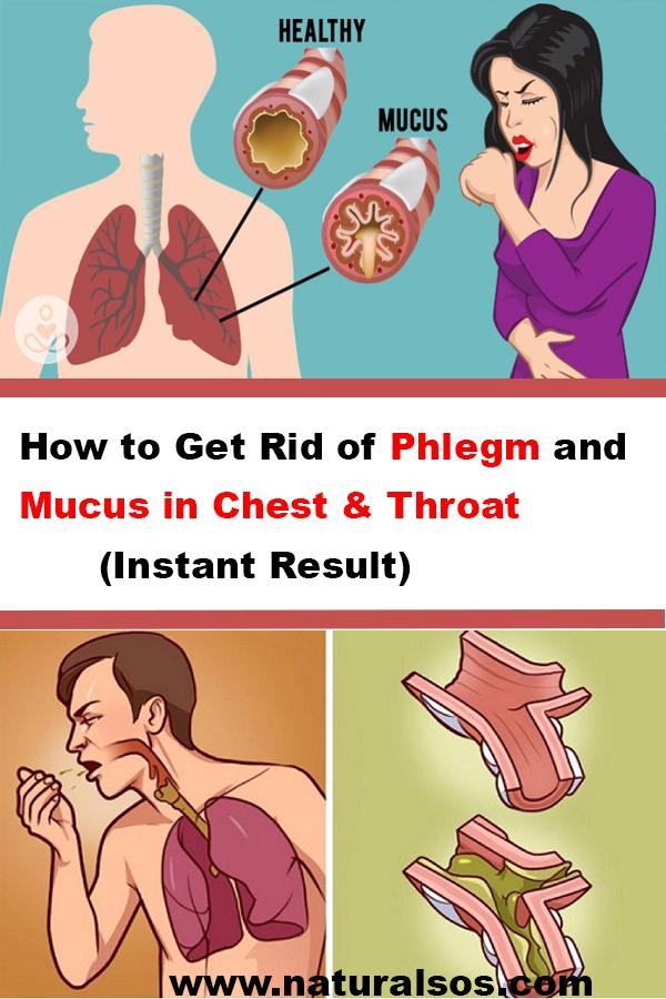 21693251992bd4e2ca66c84248bd663d - How To Get Rid Of Phlegm In Chest Asthma