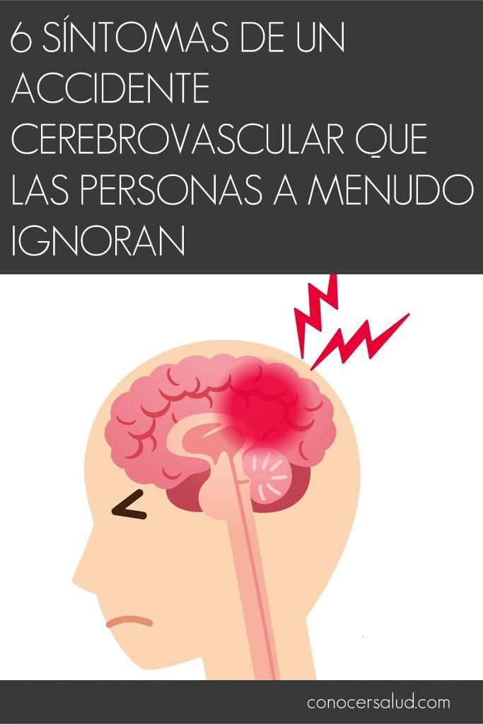 Circulación síntomas mala cerebrales los en
