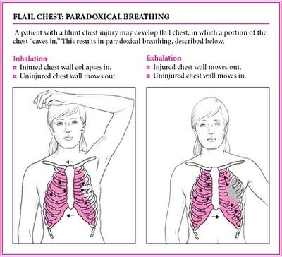 Flail Chest: Paradoxical Breathing. Monitor vital signs for shock,  administer pain meds at