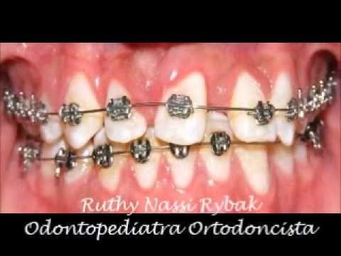 Odontopediatra Ortodoncista Dra. Ruth Nassi Rybak: AAO SAN DIEGO CALIFORNIA 117TH ANNUAL SESSION. TRE...