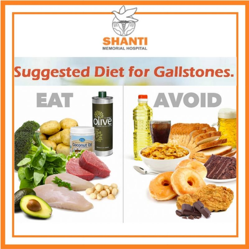 foods to avoid for gallstones ihealth directory - 736×736
