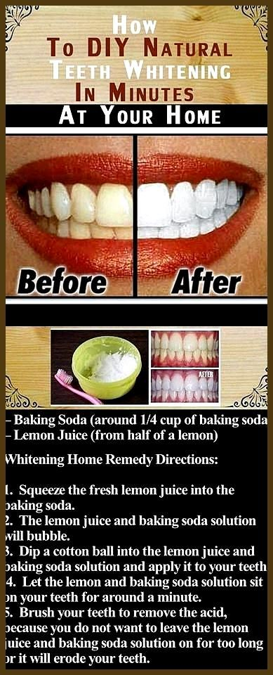 teeth whitening hi smile glo science teeth whitening teeth whitening 77002 best teeth whitening at home 2017 teeth whitening baking soda bef  teeth whitening hi smile glo science teeth whitening teeth whitening 77002 best teeth whitening at home 2017 teeth whitening baking soda before and after laser teeth whitening courses saw blade teeth explained Best Picture For teeth whitening diy For Your Taste You are looking for s #baking #science #smile #teeth #teethwhiteningdiybeforeandafter #whitening #howtowhitenyourteeth