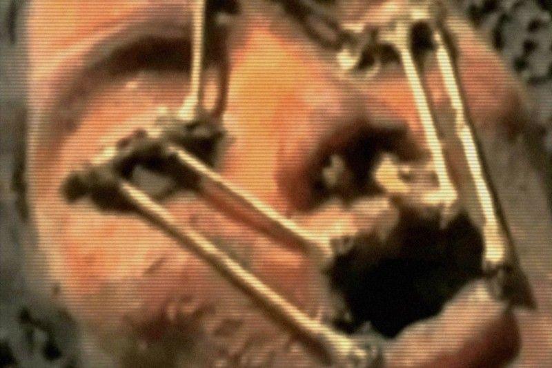 тело аполлона фото