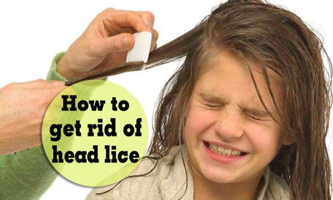 Quick Tips On How To Get Rid Of Head Lice Eggs Naturally Wikiyeah Lice Eggs Head Louse How To Get Rid