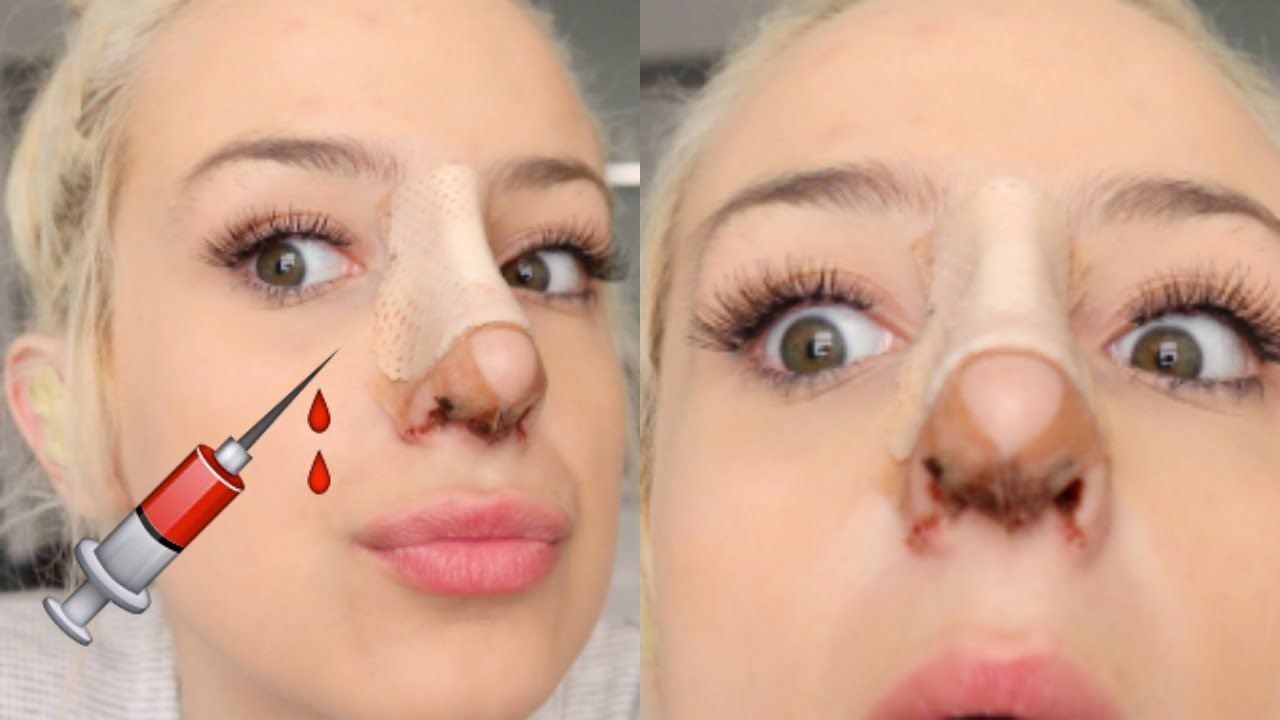 What To Do Before And After Nose Job (With images) Nose