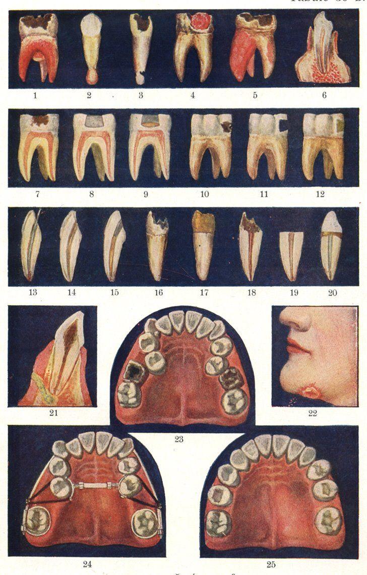 Pin de Sandra Romero en Anatomía cabeza y cuello | Pinterest ...