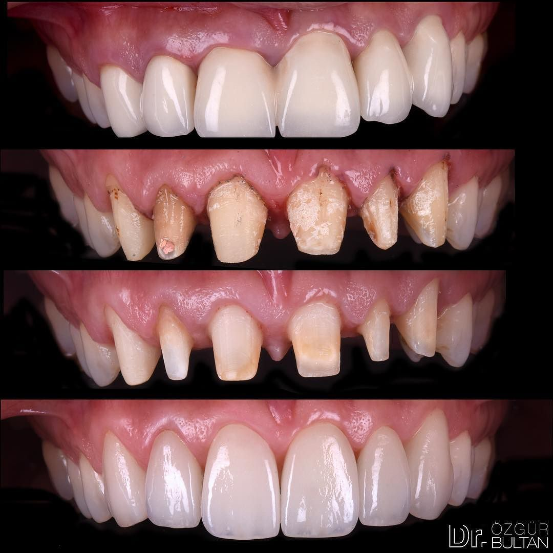 splinted zirconia crowns were replaced with ips emax restorations crown lengthening operation was