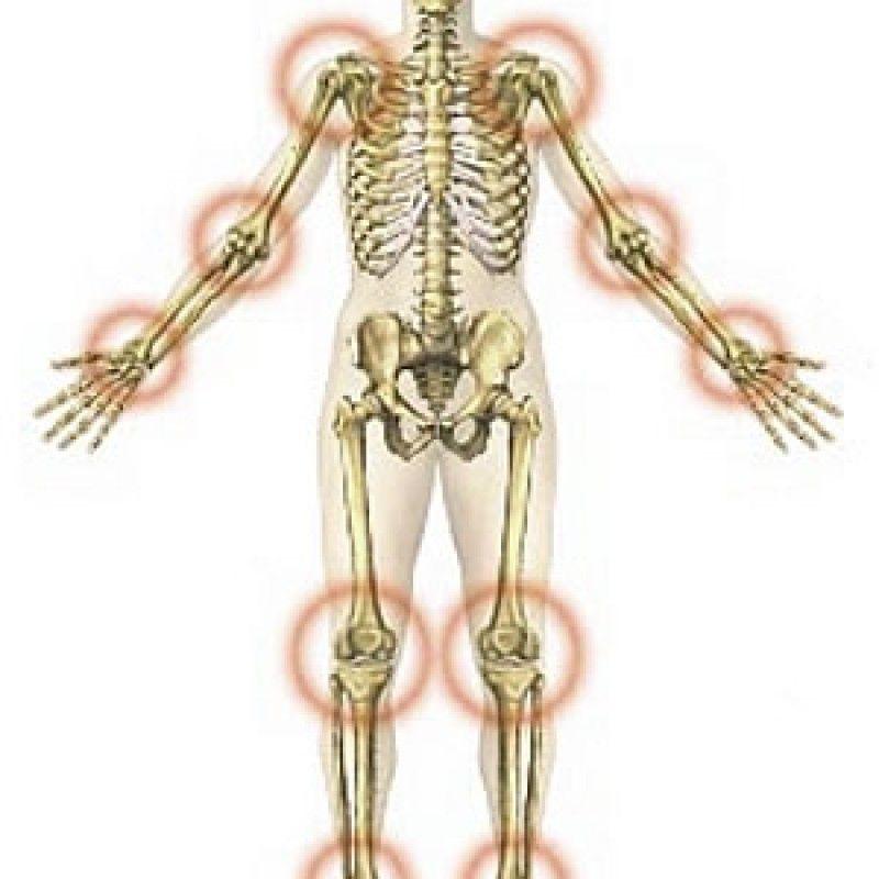 fogyókúrás csontok