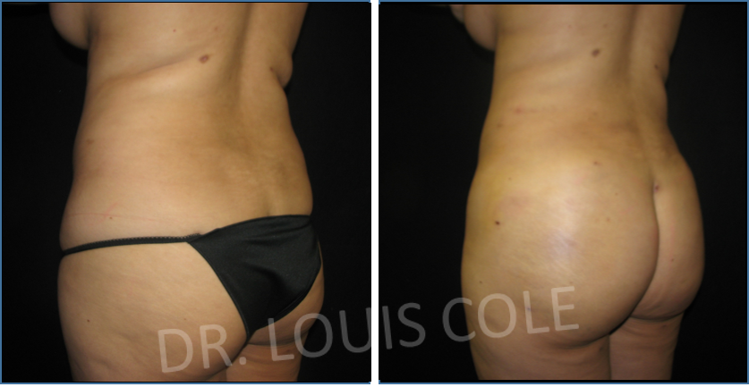 d24c558c83c Atlanta Liposuction Specialty Clinic in Norcross