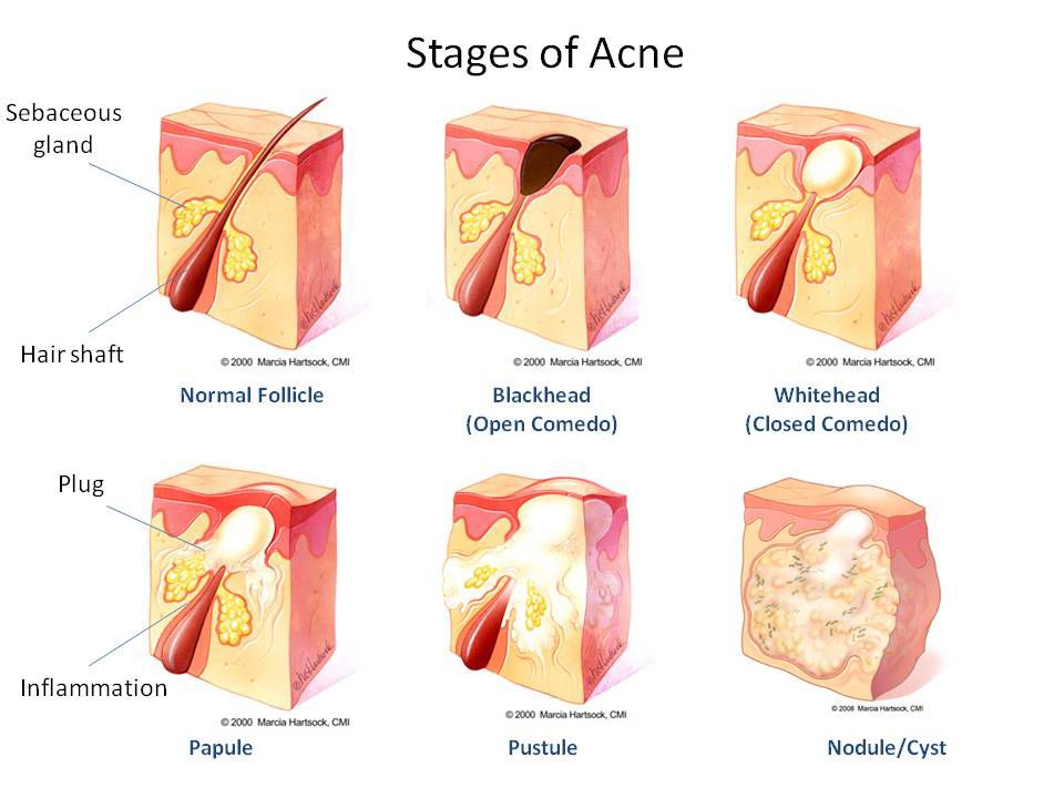 Acne, or acne vulgaris, is a skin problem that starts when oil and ...