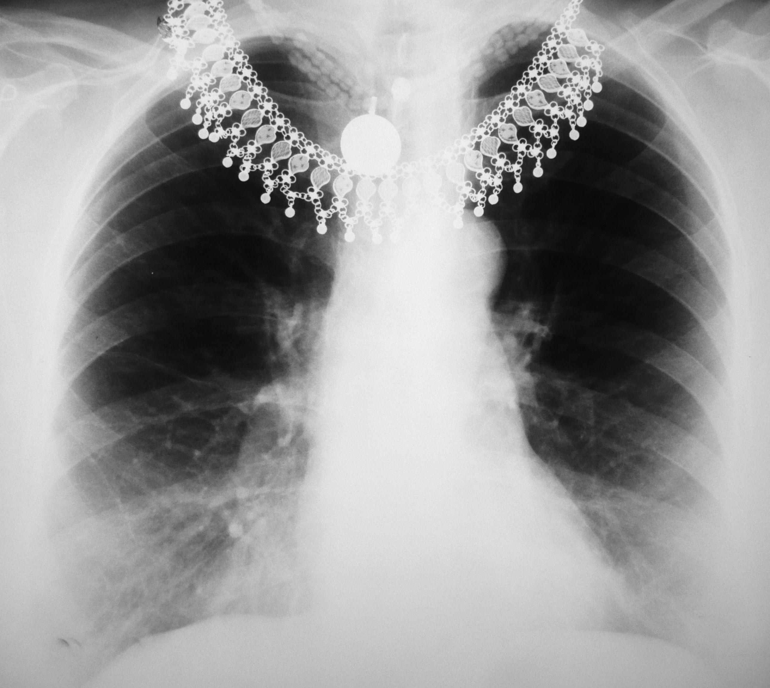 Emergency Chest X Ray