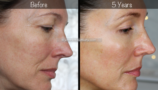 5 Year Retin A Results Before After For Wrinkles Anti Aging Hot Flashy Bloglovin Forehead Wrinkles Face Cream For Wrinkles Wrinkles
