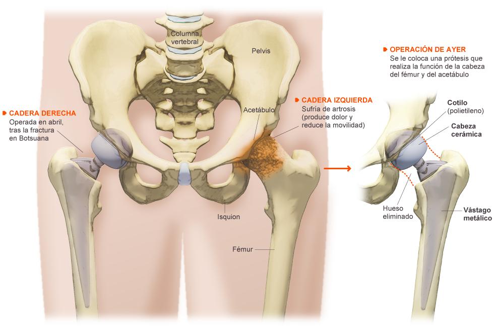 Magnífico Anatomía De La Cadera Izquierda Componente - Anatomía de ...