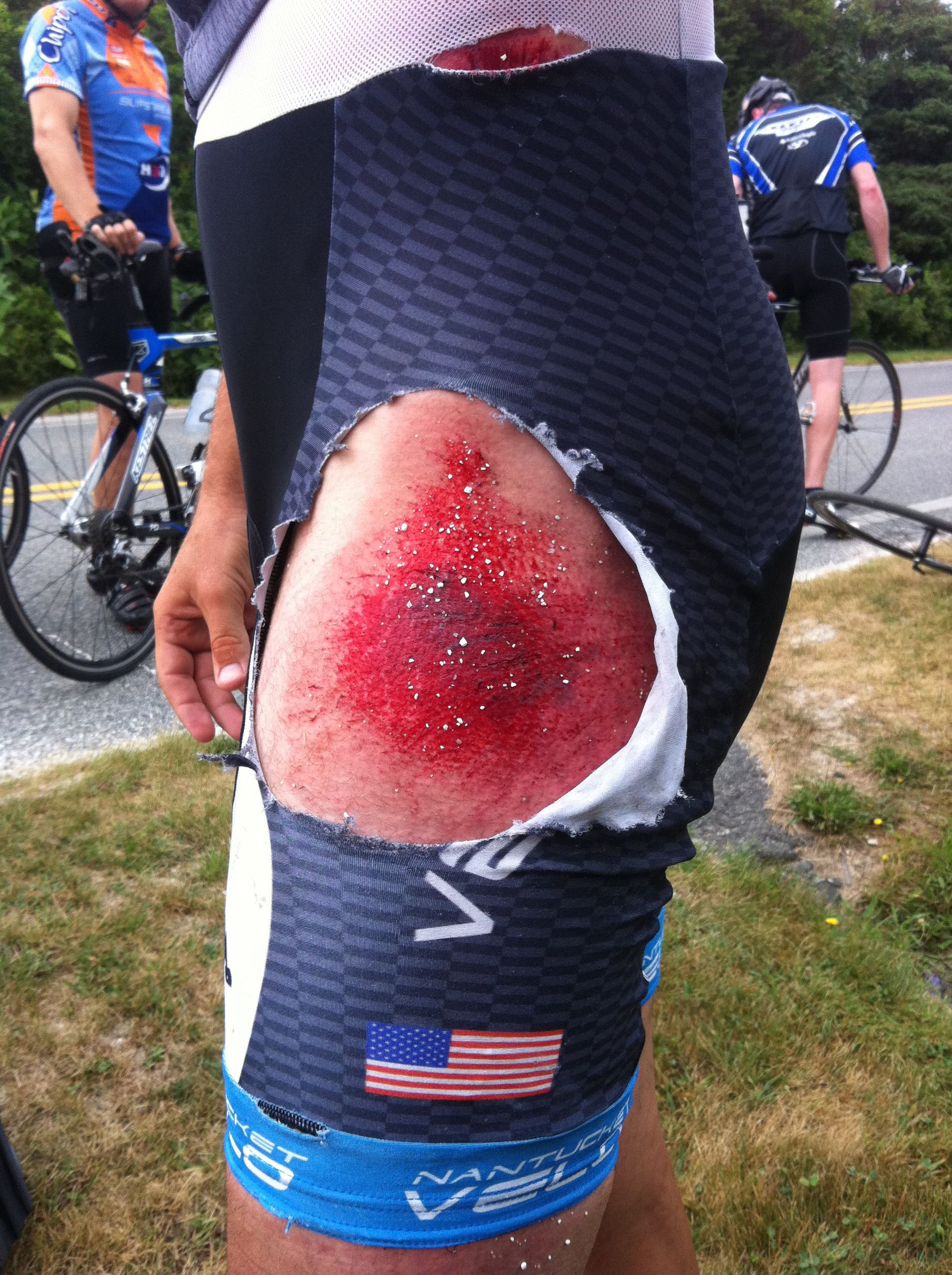 My First Road Rash Ouch Road Rash Bike Life Cycling Pictures