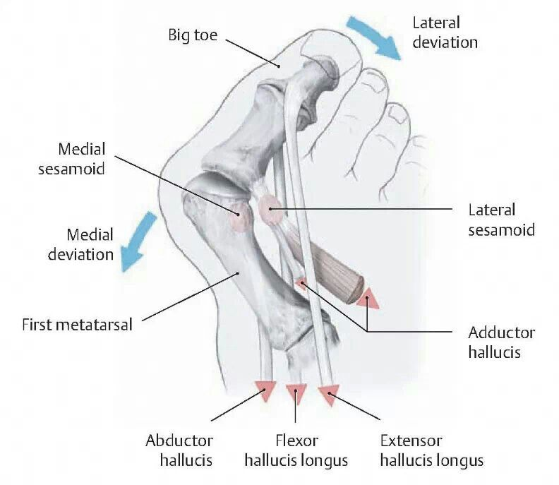 Anatomy Of A Bunion Choice Image - human body anatomy
